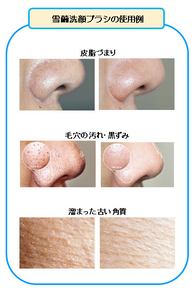 雪繭洗顔ブラシの使用例